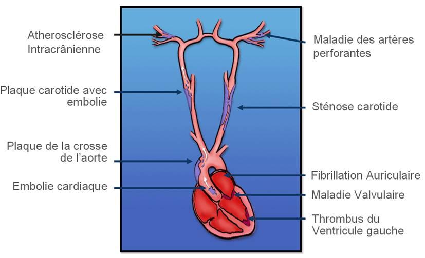 territoire vasculaire cérébral