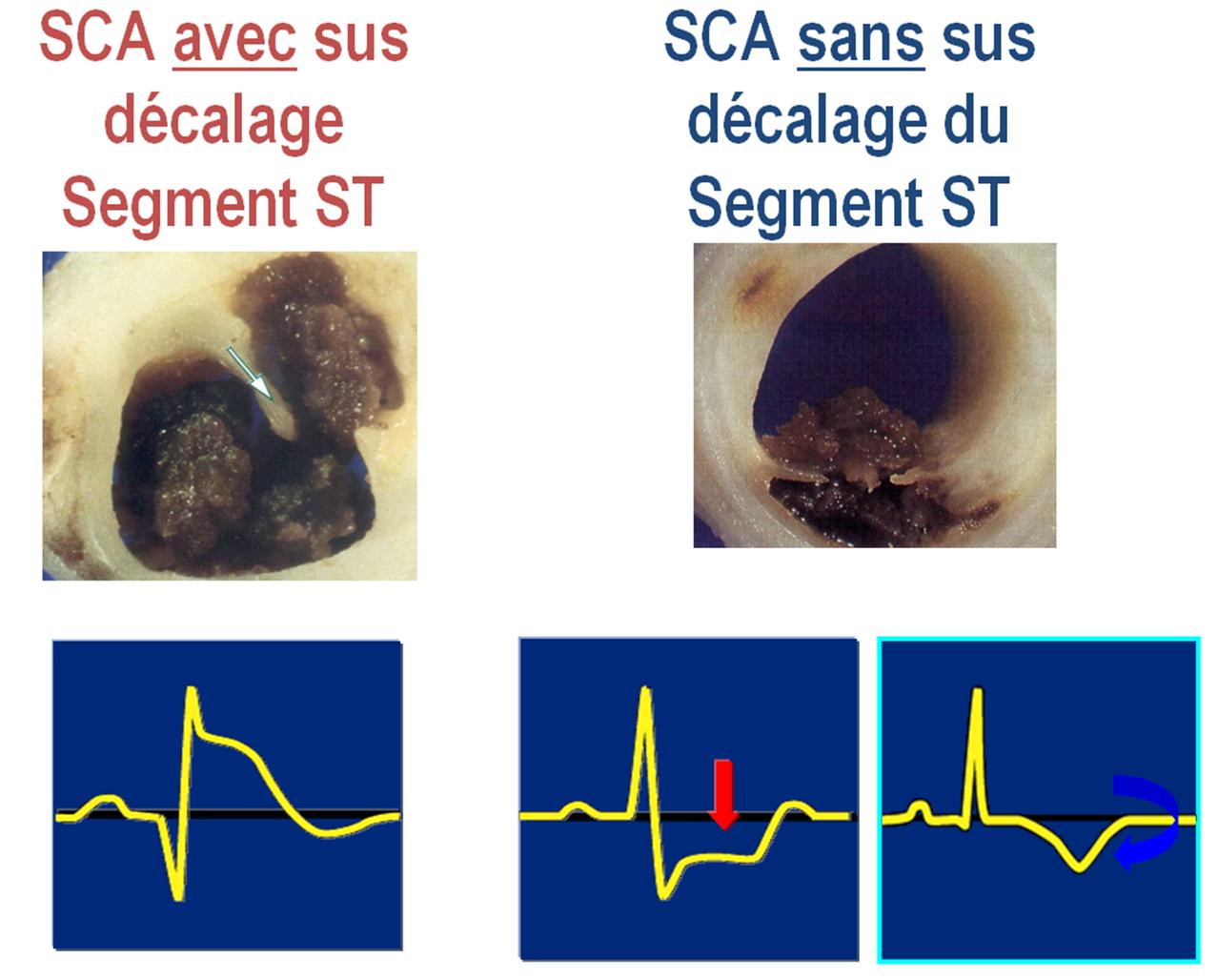 syndrome coronarien aigu aux urgences