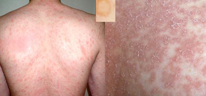 Pityriasis rosea | huidinfo.nl | informatie van de dermatoloog